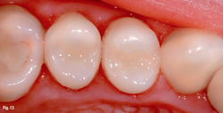White Fillings Composite