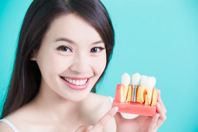 service img2 - What You Need To Know About Dental Implants